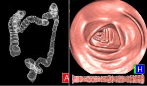 CTcolonograpy